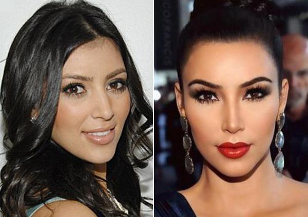 BG_Kim-Kardashian-nosejob-homepage
