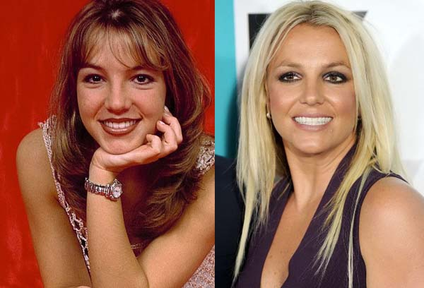 plastic-surgery-you-think-britney-had-page-the-103781