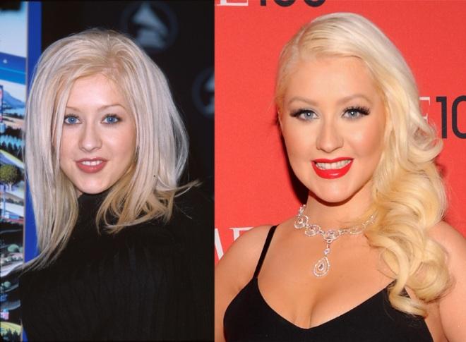 Christina-Aguilera-Nose-Job