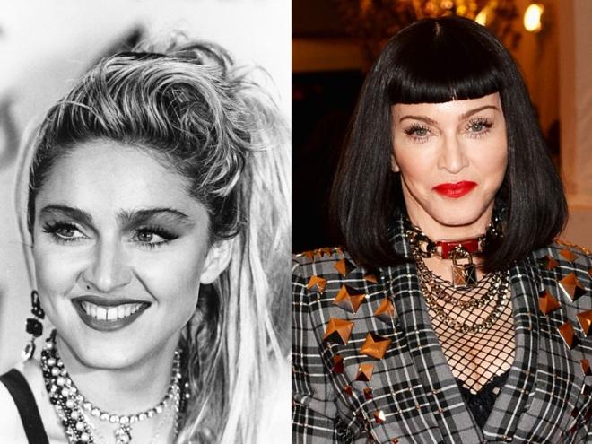 Madonna-Cheeks
