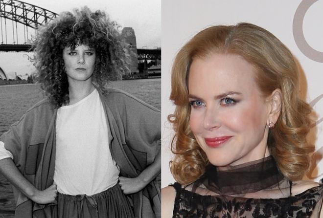 Nicole-Kidman-Frozen-Botox-Face-Cheek-Injections